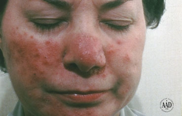 Rosacea is a common skin condition that causes redness, red bumps, pustules, swelling, and broken blood vessels on the face