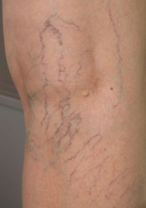 Spider veins are small, enlarged, superficial blood vessels that appear red, blue, or purple, and commonly occur on the legs.