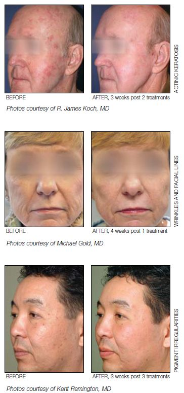 Fractional Resurfacing : ProFractional™ Therapy