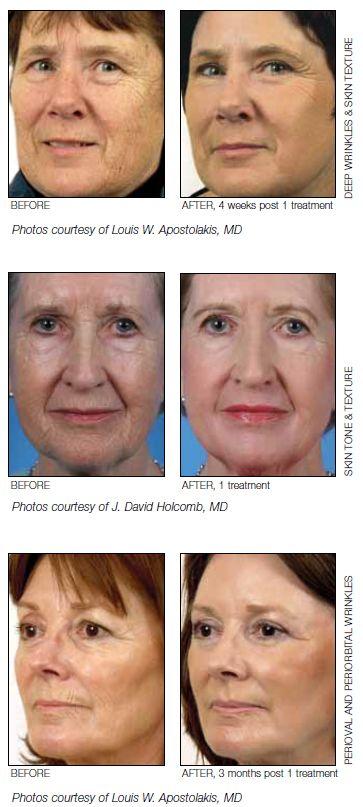 LaserPeel : Contour TRL™ Skin Resurfacing