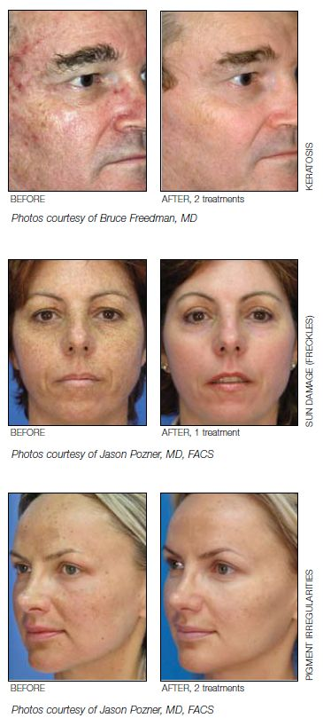 Superficial Skin Resurfacing : MicroLaserPeel®