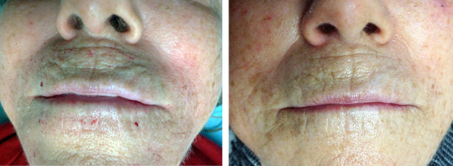 Microneedling, 1 treatment, before and after.