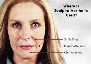 Sculptra600w-where-is-it-used