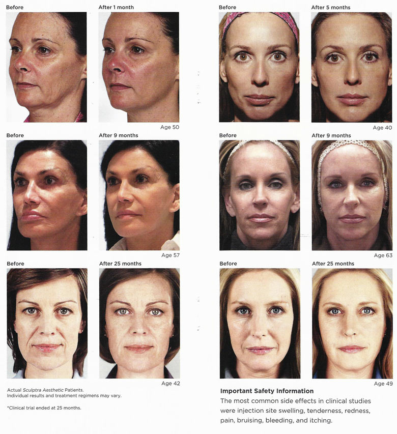 Sculptra780w-before-after