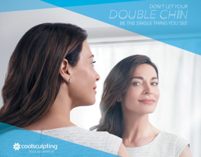 featured-Female-double-chin