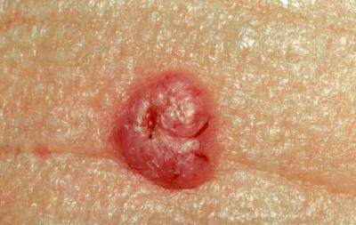 basal_cell_carcinoma