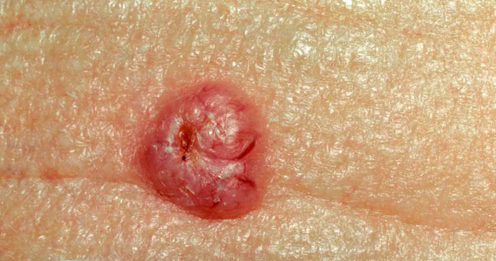 Basal Cell Carcinoma Winston Salem Dermatology Surgery