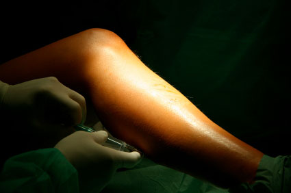 Varicose Vein repair by Winston Salem Dermatology and Surgery Center
