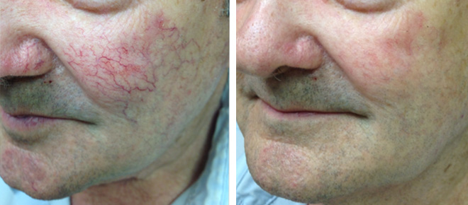 Before and After pictures of recent laser procedures performed at Winston Salem Dermatology & Surgery Center