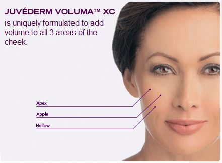 JUVEDERM Voluma XC injectable gel adds volume to the cheek areas.