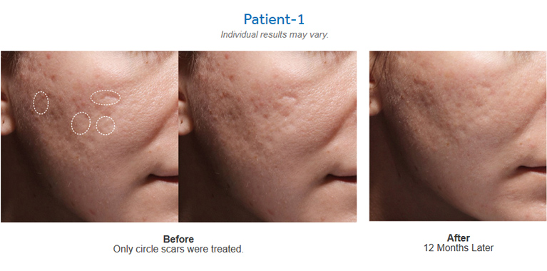 Bellafill® for Acne Scars