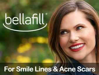 bellafill-featured