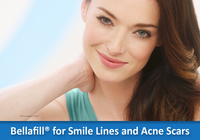 Bellafill® for Smile Lines and Acne Scars