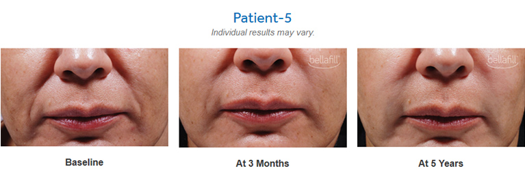 Bellafill® for Nasolabial Folds (Smile Lines)