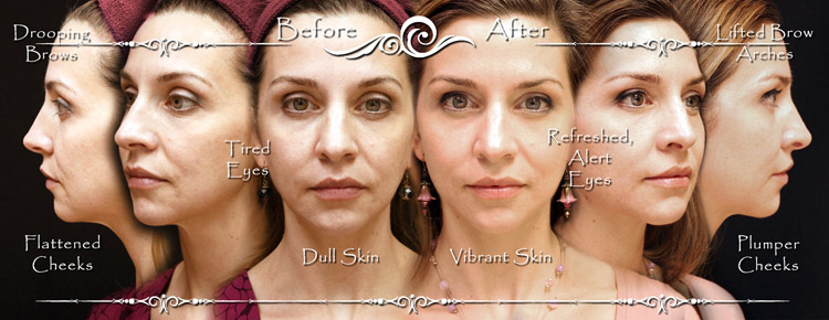 Winston-Salem Dermatology & Surgery Center Is The ONLY Dermatology Center In The Triad To Offer The Vampire Facelift® Procedure!