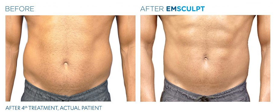 For men and women seeking refinement of the abs, the treatment is roughly equivalent to 20,000 sit-ups.