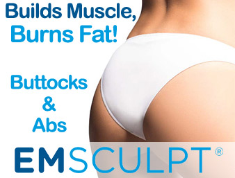 featured-Jan-emsculpt