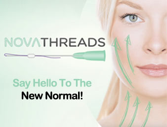PDO Thread Lift – Nonsurgical Facelift Using NovaThreads