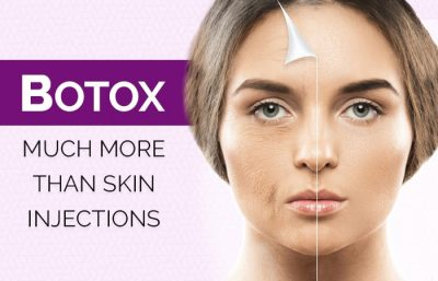 Botox Much More Than Skin Injections updated