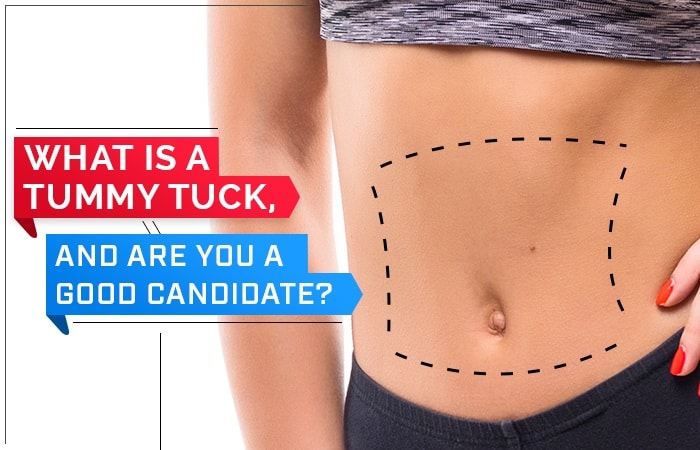 What is a Tummy Tuck, and Are You a Good Candidate?
