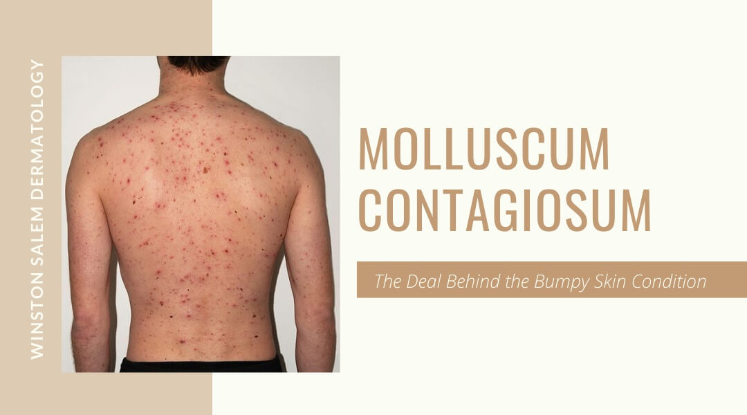 Molluscum Contagiosum – The Deal Behind the Bumpy Skin Condition
