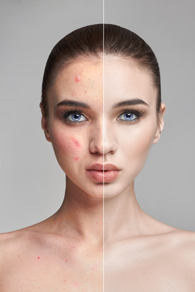 pimples-acne-woman-face-before-after