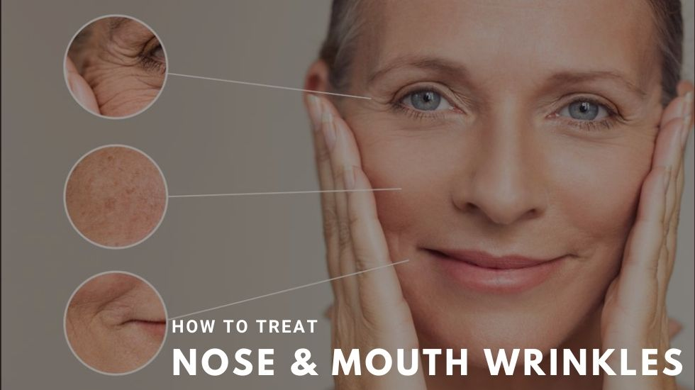 How to Treat Nose & Mouth Wrinkles